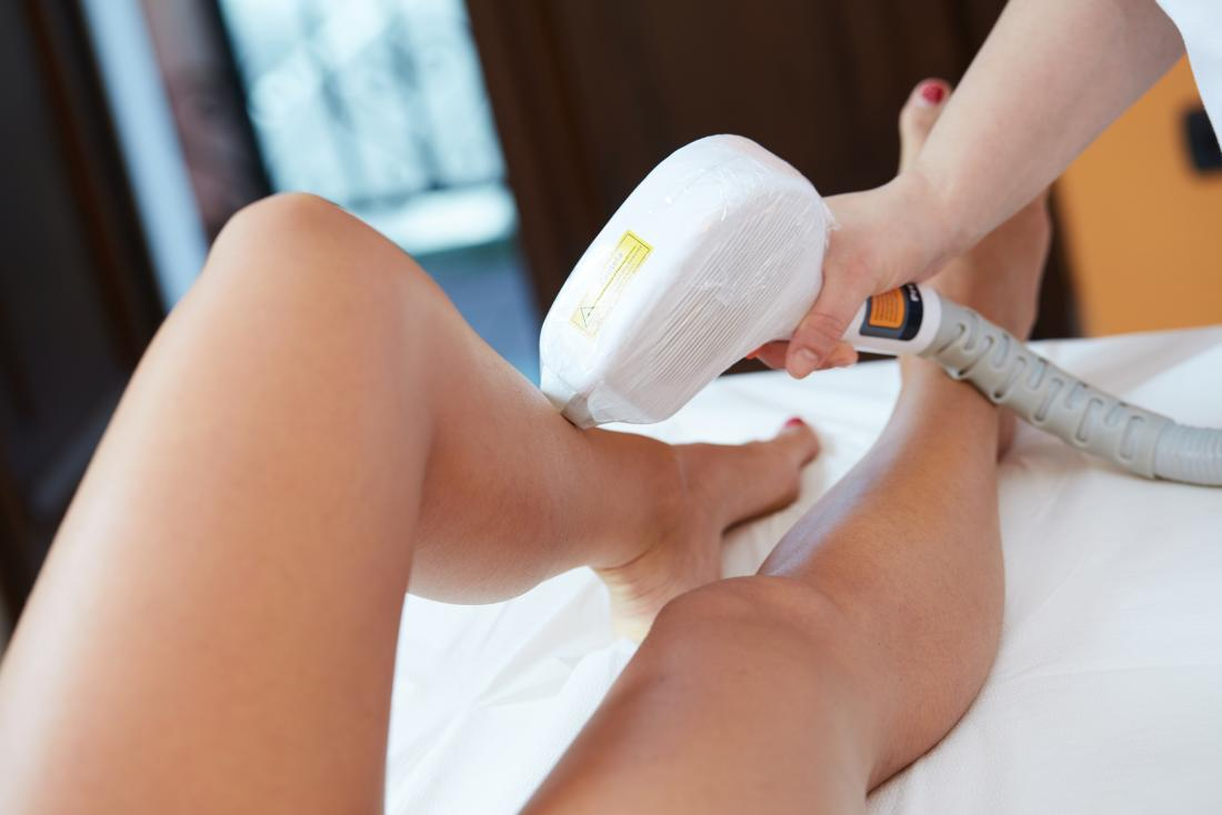 Claim compensation for a laser hair removal injury